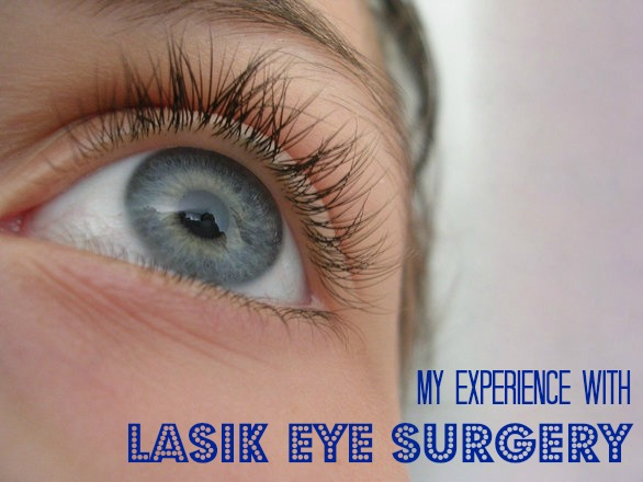 My Experience With LASIK Eye Surgery